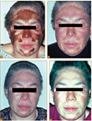 Compounded Monobenzone For Vitiligo Depigmentation Carefirst Specialty Pharmacy S Blog