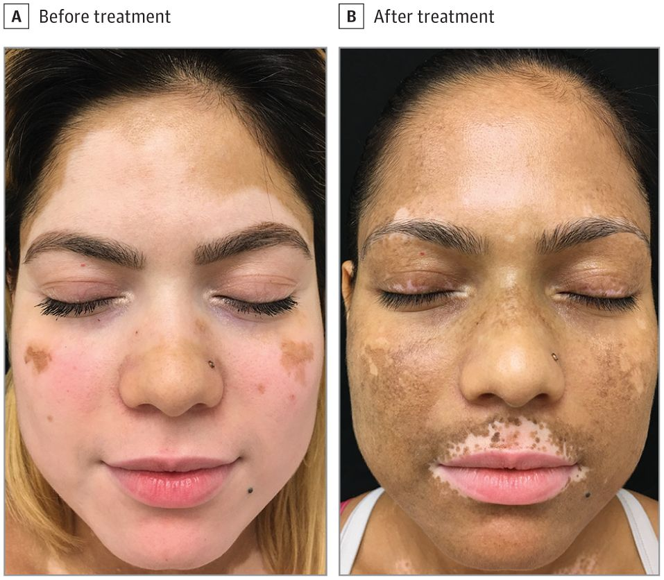 Tofacitinib Cream For Treatment Of Vitiligo Carefirst Specialty Pharmacy S Blog