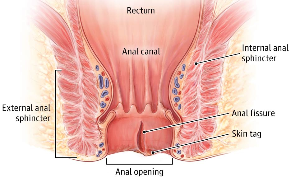 Anal Fissures: A Pain in the Butt - CareFirst Specialty ...