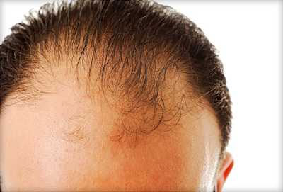 Hold The Hairline Dutasteride Vs Finasteride For Hair Loss Carefirst Specialty Pharmacy S Blog