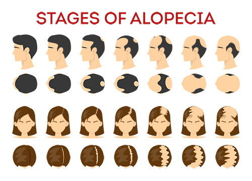 Stages of Alopecia